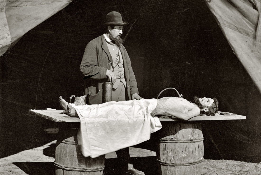 Embalming History and Facts