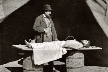 what is embalming?